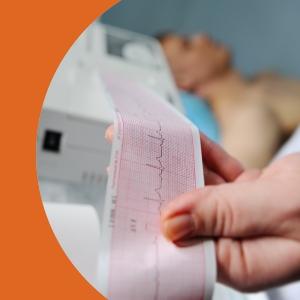Noções de Interpretação em ECG