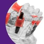 Prótese Dentária- VAGAS RESIDUAIS